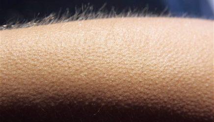 Quand tes poils se hérissent